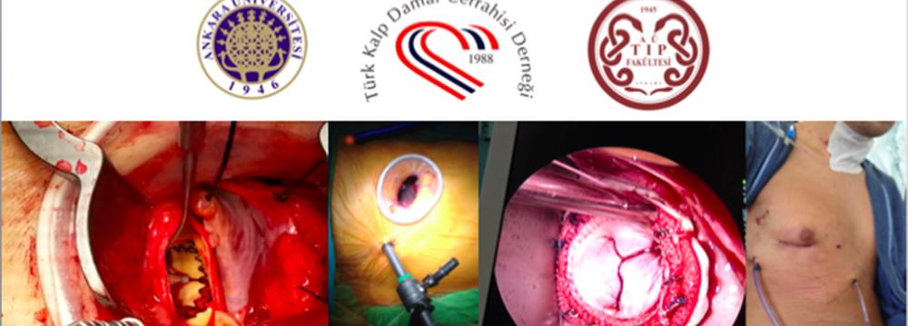 Minimal İnvaziv Kalp Cerrahisi Sempozyumu, Ankara Üniversitesi Tıp Fakültesi Cebeci Araştırma ve Uygulama Hastanesi 50. Yıl Amfisi  13 Mart 2015, Cuma